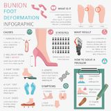 Foot deformation as medical desease infographic. Causes of bunio Royalty Free Stock Image
