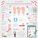 Foot deformation as medical desease infographic. Causes of bunio Royalty Free Stock Photography