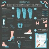 Foot deformation as medical desease infographic. Causes of bunio Stock Images