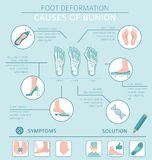 Foot deformation as medical desease infographic. Causes of bunion. Vector illustration vector illustration