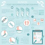 Foot deformation as medical desease infographic. Causes of bunion. Vector illustration stock illustration