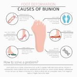 Foot deformation as medical desease infographic. Causes of bunio Royalty Free Stock Photo