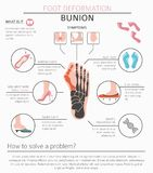 Foot deformation as medical desease infographic. Causes of bunio Stock Photos