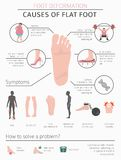 Foot deformation as medical desease infographic. Causes of Flat. Foot. Vector illustration royalty free illustration