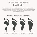 Foot deformation as medical desease infographic. Causes of Flat. Foot. Vector illustration vector illustration