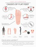 Foot deformation as medical desease infographic. Causes of Flat Royalty Free Stock Image
