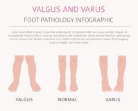 Foot deformation as medical desease infographic. Valgus and varus defect. Vector illustration vector illustration