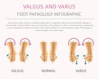 Foot deformation as medical desease infographic. Valgus and varus defect. Vector illustration stock illustration