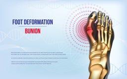 Foot deformation Bunion. Sore joints concept. Realistic bones of foot skeleton of human leg. Horizontal light blue banner for advertising, medical publications stock illustration