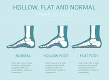 Foot deformation types, medical desease infographic. Hollow, fl. At and normal foot. Vector illustration stock illustration