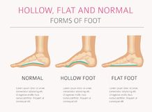 Foot deformation types, medical desease infographic. Hollow, fl. At and normal foot. Vector illustration royalty free illustration