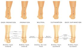 Foot deformation. Valgus and varus defect. Normal human foot and the foot with pronation or flatfoot, with hindfoot deformity stock illustration