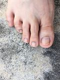 Foot and Fingernails  on Cement,Top View. Fungal infection of Nails. Feet with Disease on Concrete Floor Background. Great For Any Use Stock Photography