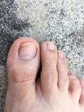 Foot and Fingernails  on Cement,Top View. Fungal infection of Nails. Feet with Disease on Concrete Floor Background. Great For Any Use Stock Image