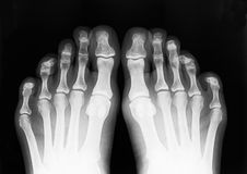 Foot fingers. Exposed on x-ray black and white film stock images
