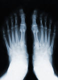 Foot fingers Royalty Free Stock Images