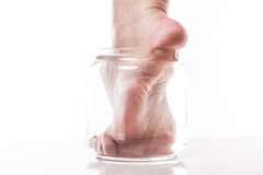 Foot girl with a dry and rough skin and calluses on the heel moi Stock Photo