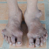 Foot of gout patient Stock Photography