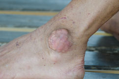 Foot  gout Royalty Free Stock Image