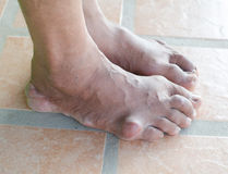 Foot of gout patient Royalty Free Stock Photo