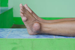 Foot of gout patient stock images