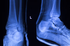 Foot heel ankle injury xray scan Stock Photo