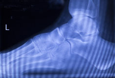 Foot heel ankle injury xray scan Stock Photography