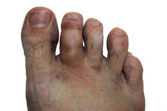 Foot injury. Stock Image