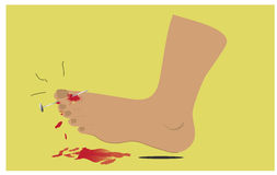 The foot injury vector illustration