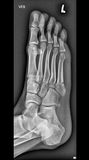 Foot medical xray, lower limb bones. Foot, lower limb bones, medical xray stock photo