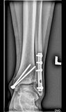 Foot medical xray, lower limb bones, broken ankle, tibia fibula with screws. Foot, lower limb bones, medical xray royalty free stock image