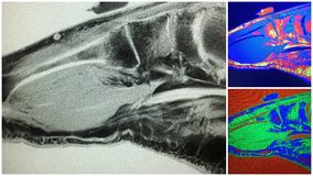 Foot mri metatarsal shaft stress fracture collage Stock Image