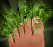 Foot Odor. And smelly feet concept with human toes releasing an awful stink as green monster faced gases coming from the sweaty perspired skin as a podiatry Stock Images