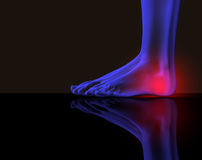 Foot and pain. Image x-ray of a feet with red pain royalty free illustration