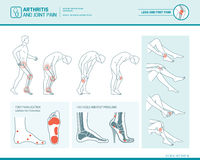 Foot pain and arthritis infographic Stock Photography