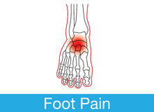 Foot pain Royalty Free Stock Photo