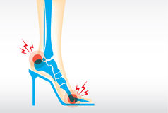 Foot pain by wearing high heels. Royalty Free Stock Image