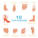 Foot Problems. Vector of Common Foot Problems Stock Photography