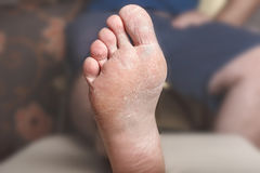Foot psoriasis. Close up of a bare man foot, with eczema and psoriazis, medical concept Royalty Free Stock Photo