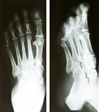 Foot radiography Royalty Free Stock Image
