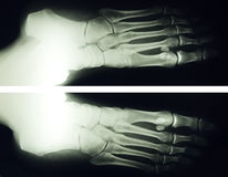 Foot x ray. X ray image of 30 year old female foot royalty free stock image