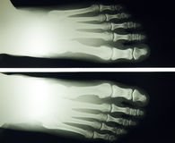 Foot x ray. X ray image of 30 year old female foot Stock Image