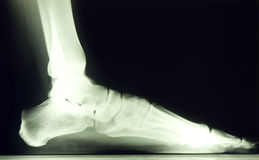 Foot x ray. X ray image of 30 year old female foot Stock Images