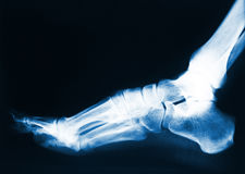 Foot x-ray. X-ray image of human foot royalty free stock photography