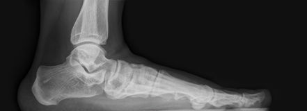 Foot  x-ray. Image from left side Stock Image