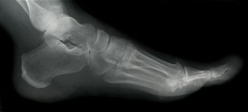 Foot X-ray. X-ray of the human foot stock photos