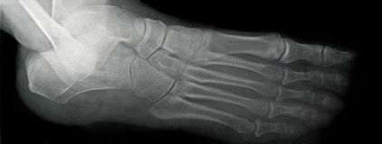 Foot X-ray, Lateral View. Lateral x-ray view of the human foot royalty free stock image
