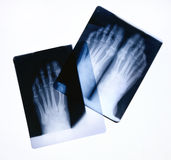 Foot X-rays. X-ray film of feet on a light box Royalty Free Stock Images