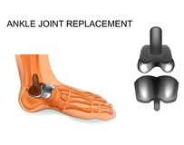 Foot skeleton. ankle replacement stock illustration