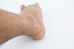 Foot skin abrasion wound accident. Right foot skin abrasion wound accident, skin out, focus skin abrasion Royalty Free Stock Images